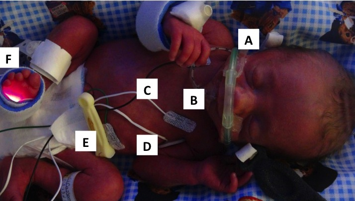 Anatomy of a NICU Baby, featuring Theodore Joseph